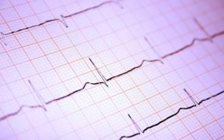 Аритмия — нарушение сердечного ритма у кошек