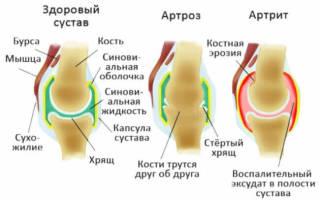 Воспаление суставов у собак: причины, лечение, профилактика